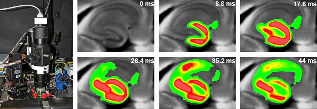<strong>Voltage-Sensitive Dye Imaging (VSDI) </strong>setup and recording of neuronal network activity in the hippocampus of a mouse.